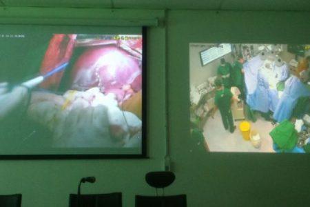 Transplantasi Hati Sedarah di RS Adam Malik